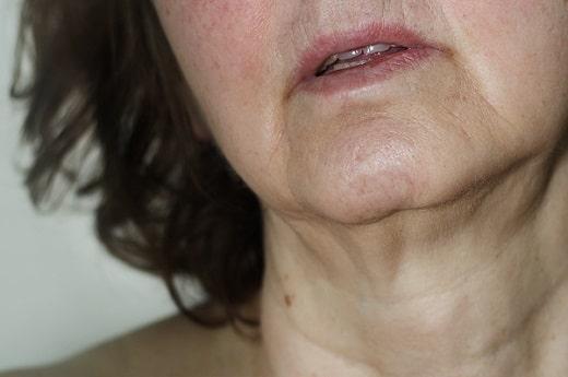 la piel del cuello y la piel de la cara